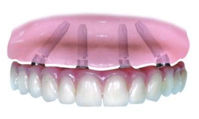 dental implant marketing