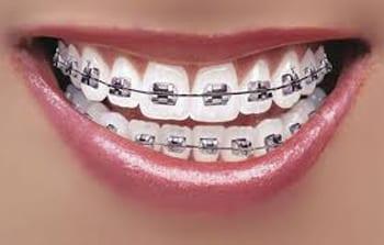 dental ortho marketing